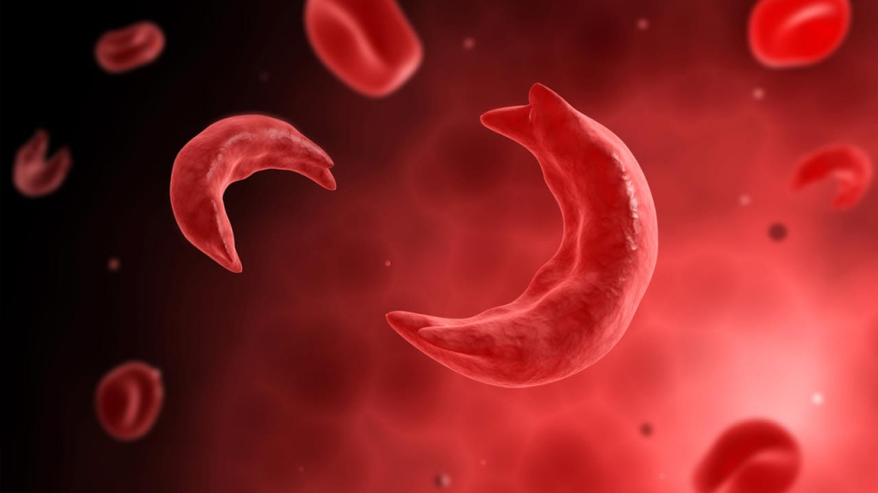 2-Sickle-Cells